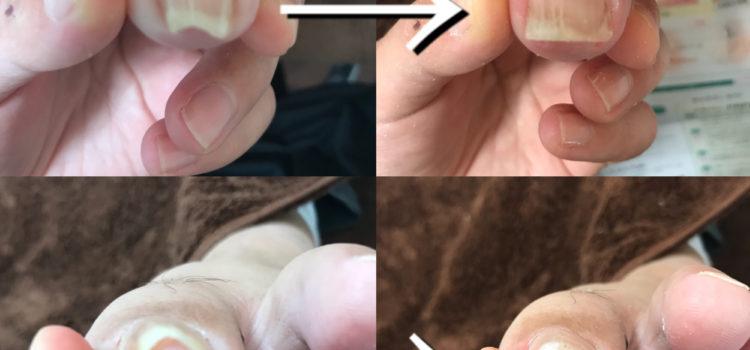 爪のお悩み