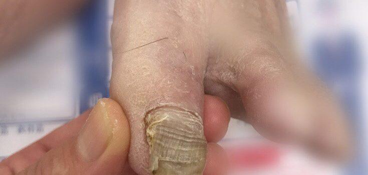 分厚い爪の理由
