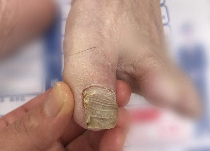 爪が分厚くなってデコボコしている\u2026見た目も良くないし、靴下も破れる。また何より靴に圧迫されて長く歩くと痛い\u2026。なぜこのように爪 が厚くなってしまうのでしょうか?